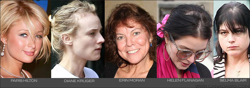 Actresses Suffering Hair loss