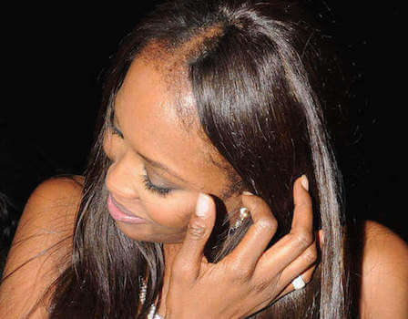 Naomi is battling hair loss too?