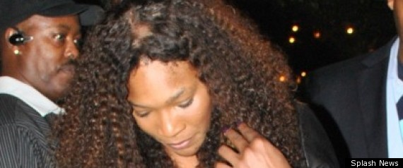 Serena hair loss fight